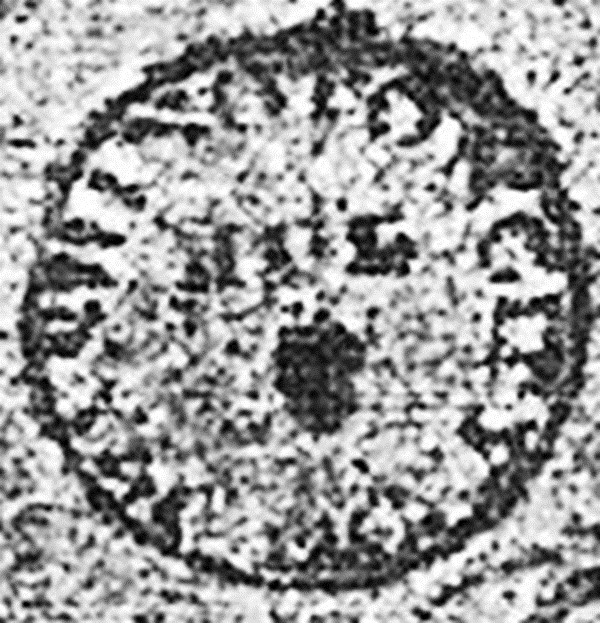 ID 937, Image ID 27085